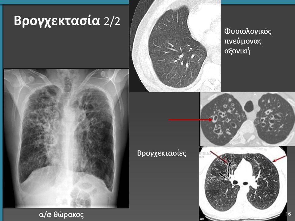 Βρογχεκτασία 2/2 α/α θώρακος Βρογχεκτασίες Φυσιολογικός πνεύμονας αξονική 16