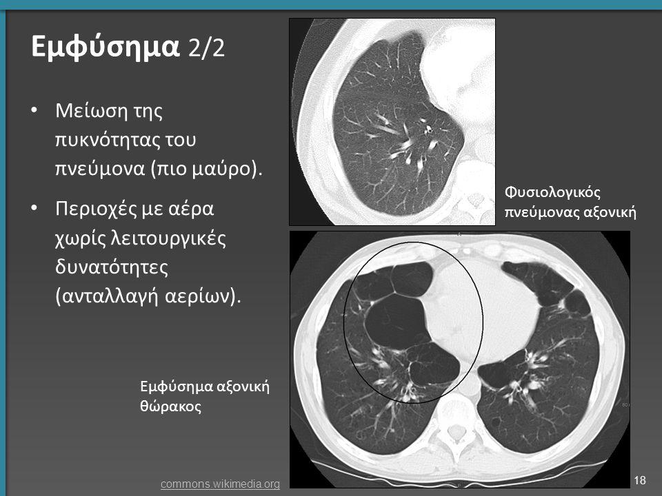 Εμφύσημα 2/2 Μείωση της πυκνότητας του πνεύμονα (πιο μαύρο). Περιοχές με αέρα χωρίς λειτουργικές δυνατότητες (ανταλλαγή αερίων). Φυσιολογικός πνεύμονα