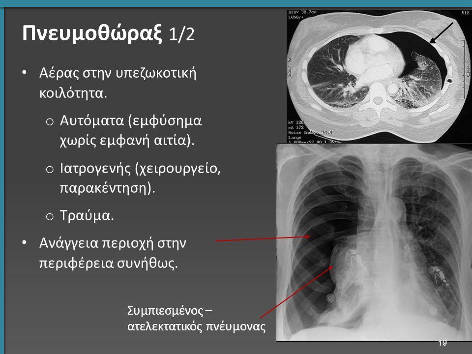 Αέρας στην υπεζωκοτική κοιλότητα. o Αυτόματα (εμφύσημα χωρίς εμφανή αιτία). o Ιατρογενής (χειρουργείο, παρακέντηση). o Τραύμα. Ανάγγεια περιοχή στην π