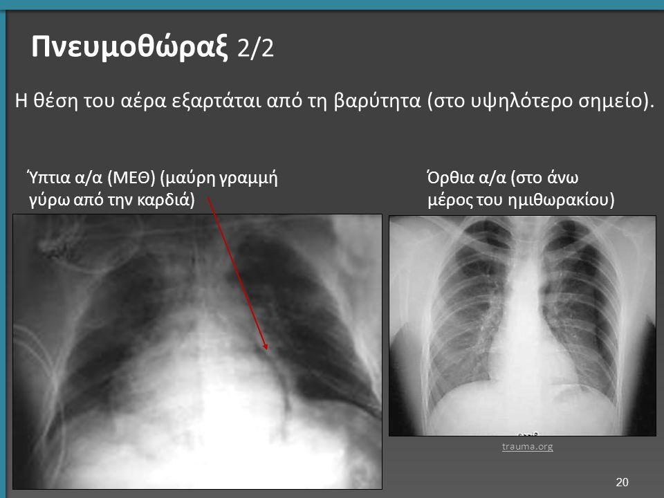 Πνευμοθώραξ 2/2 Η θέση του αέρα εξαρτάται από τη βαρύτητα (στο υψηλότερο σημείο). Ύπτια α/α (ΜΕΘ) (μαύρη γραμμή γύρω από την καρδιά) Όρθια α/α (στο άν