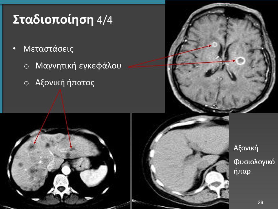 Σταδιοποίηση 4/4 Μεταστάσεις o Μαγνητική εγκεφάλου o Αξονική ήπατος Αξονική Φυσιολογικό ήπαρ 29
