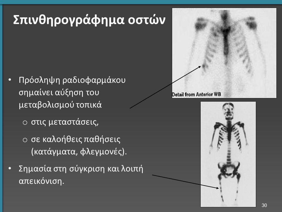 Σπινθηρογράφημα οστών Πρόσληψη ραδιοφαρμάκου σημαίνει αύξηση του μεταβολισμού τοπικά o στις μεταστάσεις, o σε καλοήθεις παθήσεις (κατάγματα, φλεγμονές