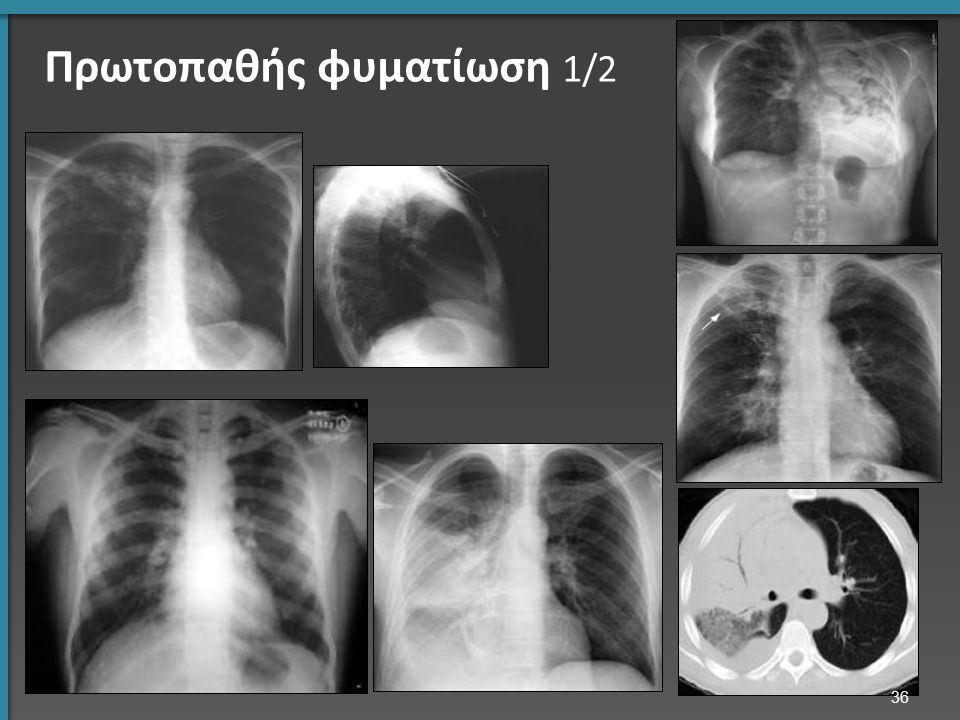 Πρωτοπαθής φυματίωση 1/2 36