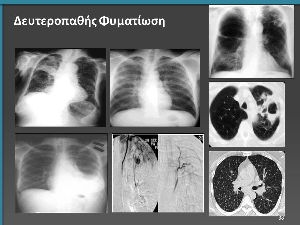 Δευτεροπαθής Φυματίωση 38