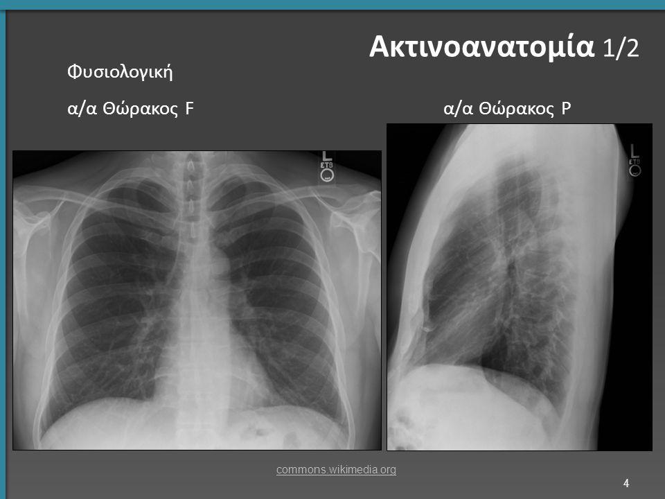 Αγγειογραφία πνευμονικών αρτηριών Βρογχογραφία (δεν γίνεται πλέον) 5 Ακτινοανατομία 2/2 slideplayer.com