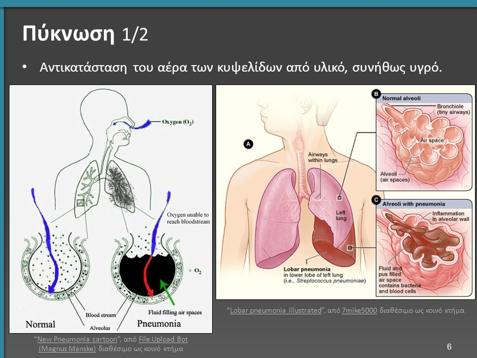"""Πύκνωση 1/2 6 Αντικατάσταση του αέρα των κυψελίδων από υλικό, συνήθως υγρό. """"New Pneumonia cartoon"""", από File Upload Bot (Magnus Manske) διαθέσιμο ως"""