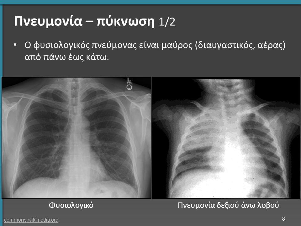 Πνευμονία – πύκνωση 1/2 Ο φυσιολογικός πνεύμονας είναι μαύρος (διαυγαστικός, αέρας) από πάνω έως κάτω. ΦυσιολογικόΠνευμονία δεξιού άνω λοβού 8 commons