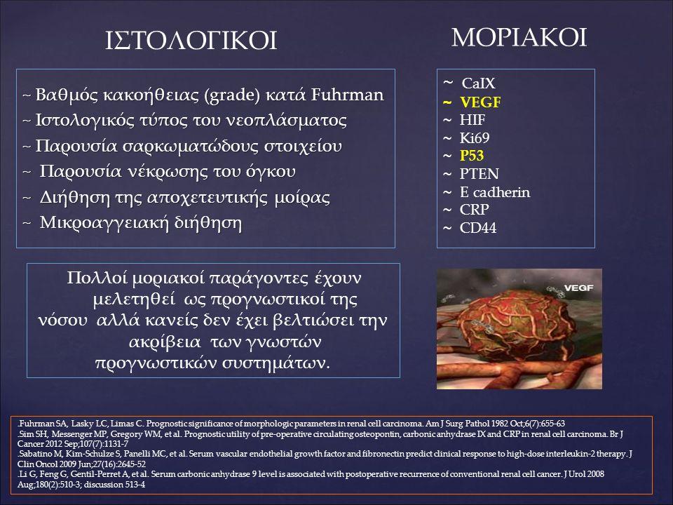 ~ Βαθμός κακοήθειας (grade) κατά Fuhrman ~ Ιστολογικός τύπος του νεοπλάσματος ~ Παρουσία σαρκωματώδους στοιχείου ~ Παρουσία νέκρωσης του όγκου ~ Διήθηση της αποχετευτικής μοίρας ~ Μικροαγγειακή διήθηση.Fuhrman SA, Lasky LC, Limas C.