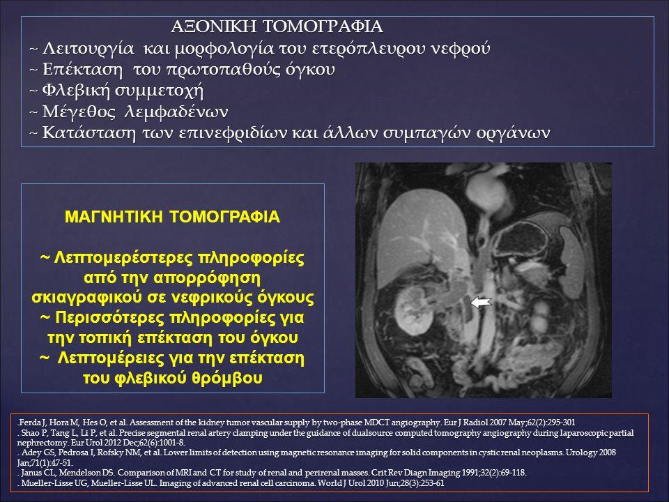 ΑΞΟΝΙΚΗ ΤΟΜΟΓΡΑΦΙΑ ΑΞΟΝΙΚΗ ΤΟΜΟΓΡΑΦΙΑ ~ Λειτουργία και μορφολογία του ετερόπλευρου νεφρού ~ Επέκταση του πρωτοπαθούς όγκου ~ Φλεβική συμμετοχή ~ Μέγεθος λεμφαδένων ~ Κατάσταση των επινεφριδίων και άλλων συμπαγών οργάνων.Ferda J, Hora M, Hes O, et al.