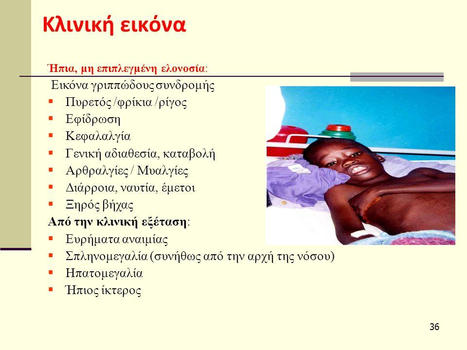 36 Κλινική εικόνα Ήπια, μη επιπλεγμένη ελονοσία: Εικόνα γριππώδους συνδρομής  Πυρετός /φρίκια /ρίγος  Εφίδρωση  Κεφαλαλγία  Γενική αδιαθεσία, καταβολή  Αρθραλγίες / Μυαλγίες  Διάρροια, ναυτία, έμετοι  Ξηρός βήχας Από την κλινική εξέταση:  Ευρήματα αναιμίας  Σπληνομεγαλία (συνήθως από την αρχή της νόσου)  Ηπατομεγαλία  Ήπιος ίκτερος