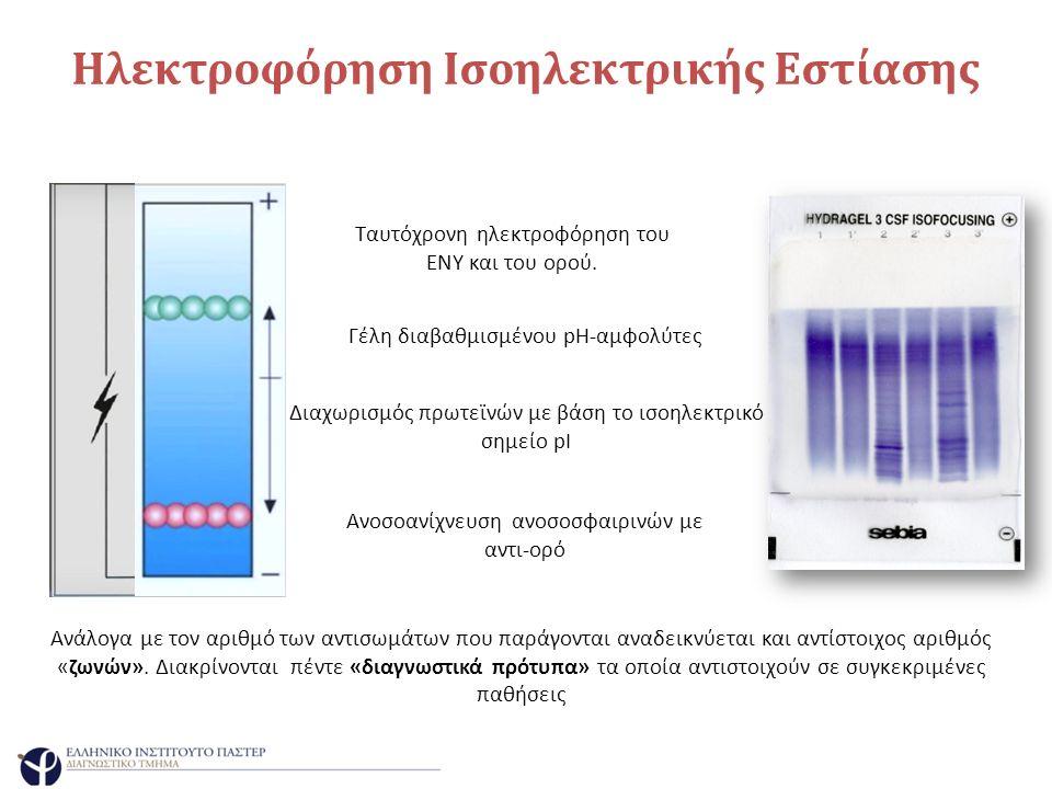 Ηλεκτροφόρηση Ισοηλεκτρικής Εστίασης Ανοσοανίχνευση ανοσοσφαιρινών με αντι-ορό Ανάλογα με τον αριθμό των αντισωμάτων που παράγονται αναδεικνύεται και αντίστοιχος αριθμός «ζωνών».
