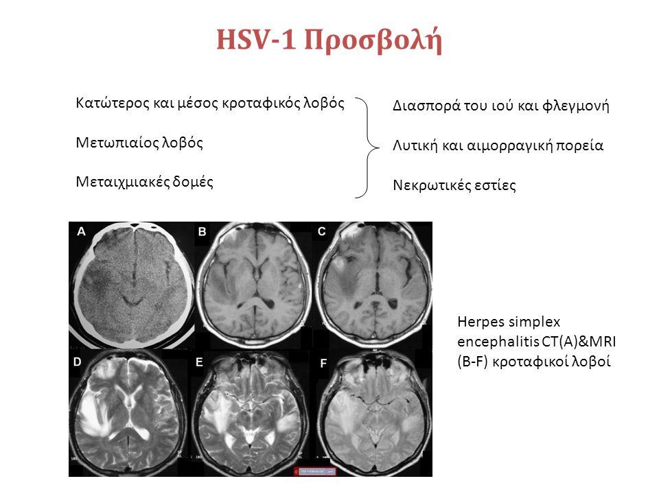 HSV-1 Προσβολή Κατώτερος και μέσος κροταφικός λοβός Μετωπιαίος λοβός Μεταιχμιακές δομές Διασπορά του ιού και φλεγμονή Λυτική και αιμορραγική πορεία Νε