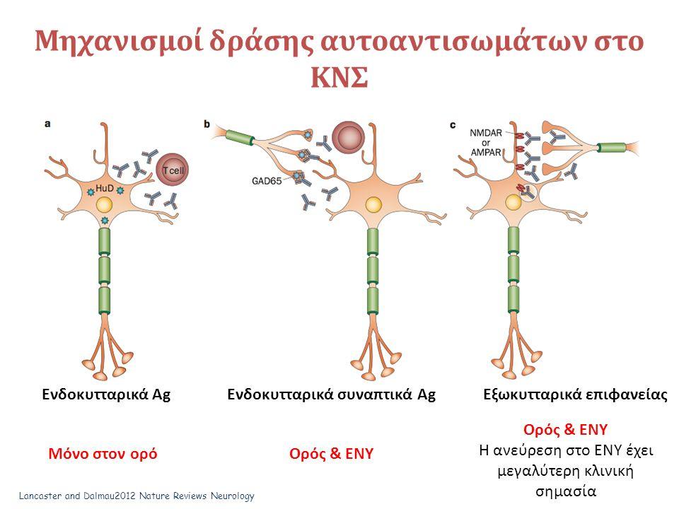 Μηχανισμοί δράσης αυτοαντισωμάτων στο ΚΝΣ Ενδοκυτταρικά Αg Ενδοκυτταρικά συναπτικά AgΕξωκυτταρικά επιφανείας Μόνο στον ορόΟρός & ΕΝΥ Η ανεύρεση στο ΕΝΥ έχει μεγαλύτερη κλινική σημασία Lancaster and Dalmau2012 Nature Reviews Neurology