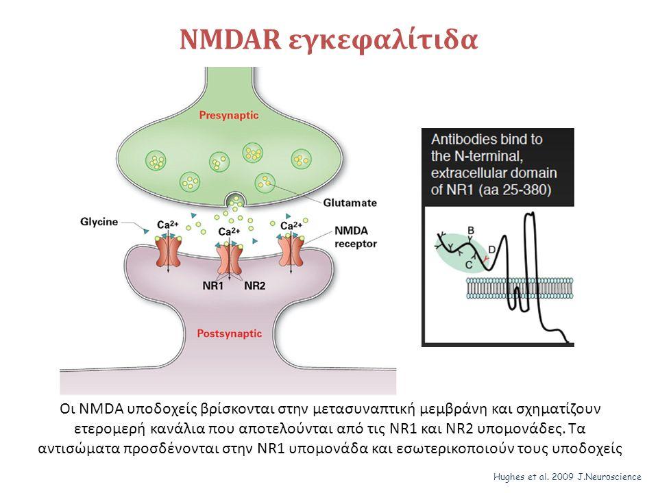 NMDAR εγκεφαλίτιδα Οι NMDA υποδοχείς βρίσκονται στην μετασυναπτική μεμβράνη και σχηματίζουν ετερομερή κανάλια που αποτελούνται από τις NR1 και ΝR2 υπομονάδες.