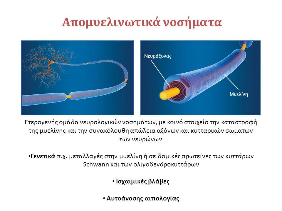 Απομυελινωτικά νοσήματα Ετερογενής ομάδα νευρολογικών νοσημάτων, με κοινό στοιχείο την καταστροφή της μυελίνης και την συνακόλουθη απώλεια αξόνων και κυτταρικών σωμάτων των νευρώνων Γενετικά π.χ.