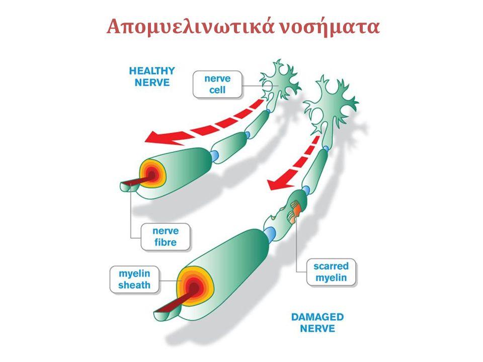Απομυελινωτικά και φλεγμονώδη νοσημάτα του ΚΝΣ και ΠΝΣ Οξεία φλεγμονώδης πολυνευροπάθεια (GBS) Χρόνια φλεγμονώδης απομυελινωτική πολυνευροπάθεια (CIDP) Πολυνευροπάθειες συσχετιζόμενες με IgMμονοκλωνικές γαμμαπάθειες Παρανεοπλασματικές νευροπάθειες Πολλαπλή Σκλήρυνση Οξεία απομυελινωτική εγκεφαλομυελίτιδα (ADEM) Απομυελινωτική νόσος Συστηματικού νοσήματος Οπτική νευρομυελίτιδα (Νόσος Devic)