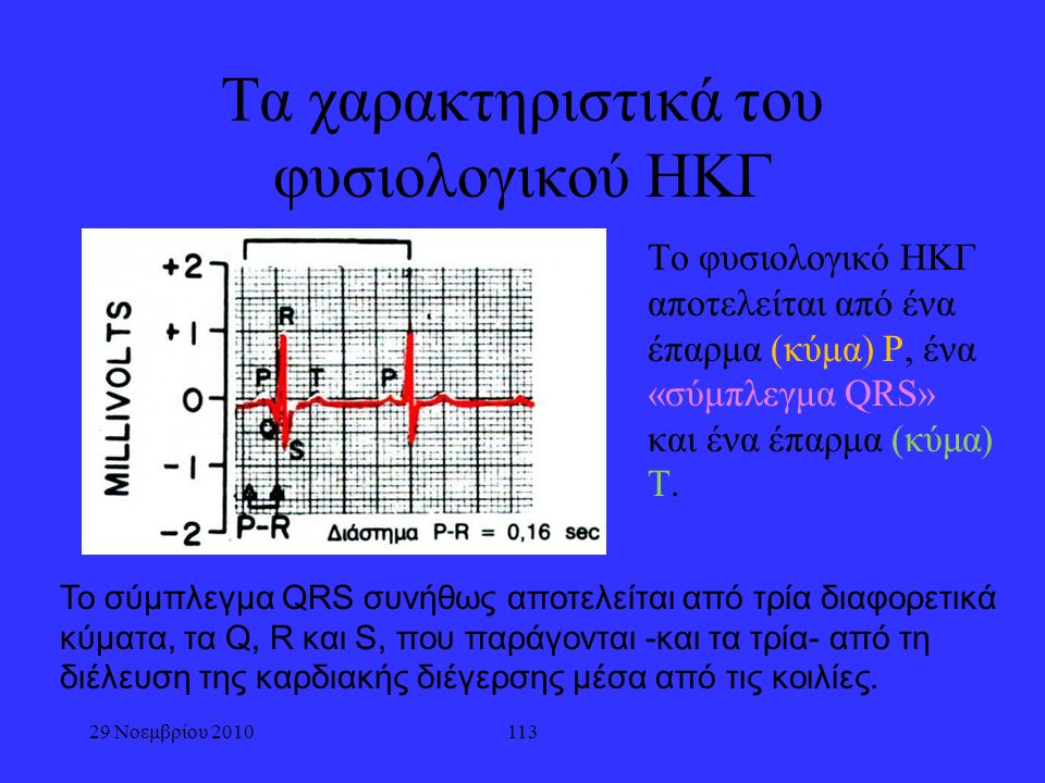 29 Νοεμβρίου 2010113 Τα χαρακτηριστικά του φυσιολογικού ΗΚΓ Το φυσιολογικό ΗΚΓ αποτελείται από ένα έπαρμα (κύμα) Ρ, ένα «σύμπλεγμα QRS» και ένα έπαρμα