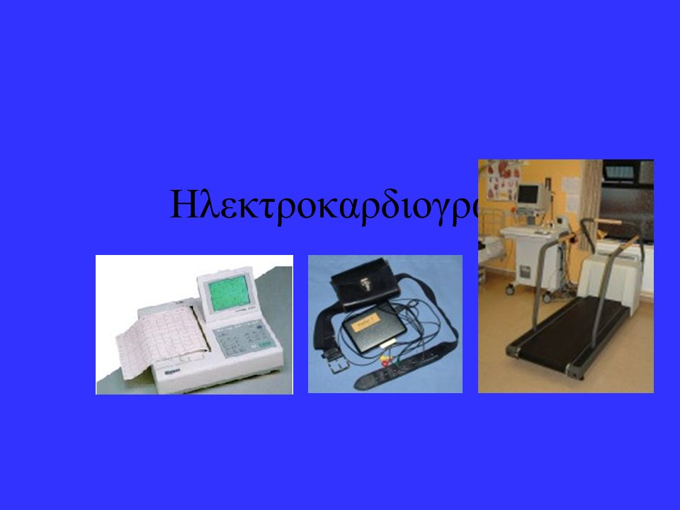 Ηλεκτροκαρδιογραφία