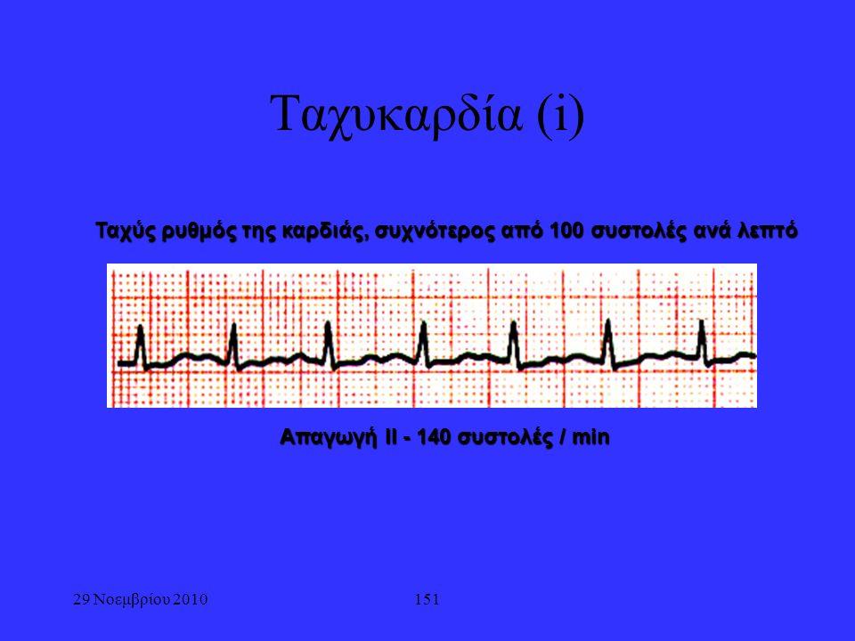 29 Νοεμβρίου 2010151 Ταχυκαρδία (i) Ταχύς ρυθμός της καρδιάς, συχνότερος από 100 συστολές ανά λεπτό Απαγωγή ΙΙ - 140 συστολές / min