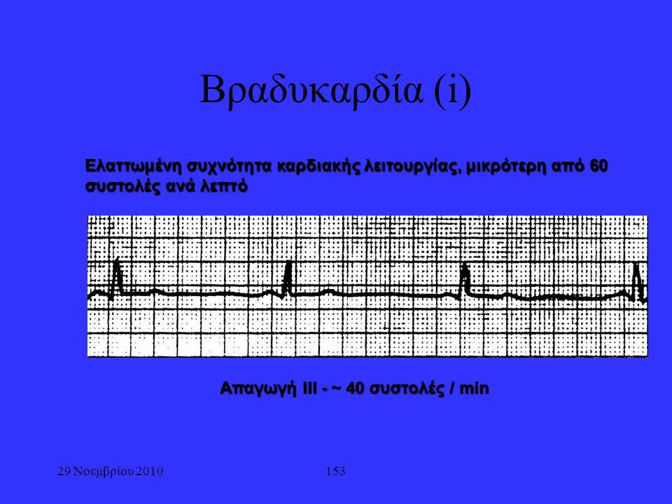 29 Νοεμβρίου 2010153 Βραδυκαρδία (i) Ελαττωμένη συχνότητα καρδιακής λειτουργίας, μικρότερη από 60 συστολές ανά λεπτό Απαγωγή ΙΙΙ - ~ 40 συστολές / min