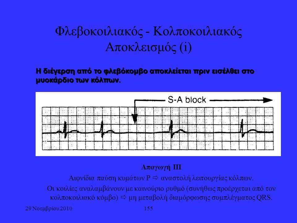 155 Φλεβοκοιλιακός - Κολποκοιλιακός Αποκλεισμός (i) Απαγωγή ΙΙΙ Αιφνίδια παύση κυμάτων P  αναστολή λειτουργίας κόλπων. Οι κοιλίες αναλαμβάνουν με και