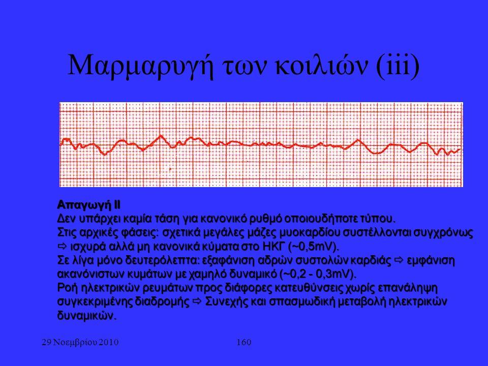 160 Μαρμαρυγή των κοιλιών (iii) Απαγωγή ΙΙ Δεν υπάρχει καμία τάση για κανονικό ρυθμό οποιουδήποτε τύπου. Στις αρχικές φάσεις: σχετικά μεγάλες μάζες μυ