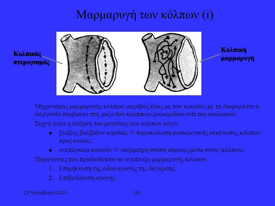 161 Μαρμαρυγή των κόλπων (i) Μηχανισμός μαρμαρυγής κόλπων: ακριβώς ίδιος με των κοιλιών, με τη διαφορά ότι η διεργασία συμβαίνει στη μάζα του κολπικού