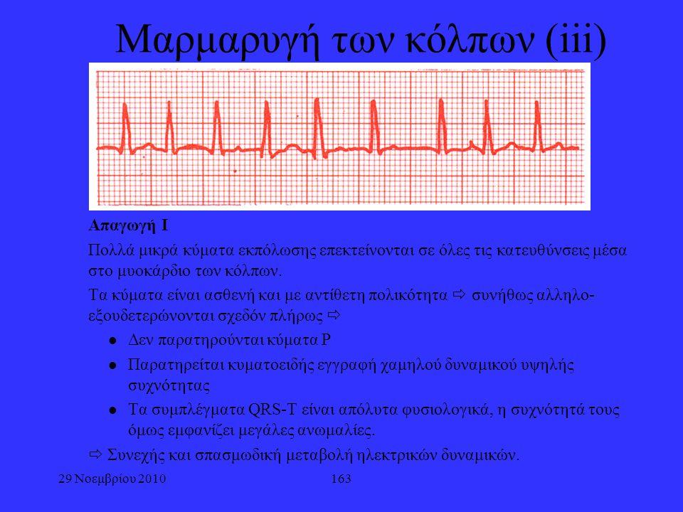 163 Μαρμαρυγή των κόλπων (iii) Απαγωγή Ι Πολλά μικρά κύματα εκπόλωσης επεκτείνονται σε όλες τις κατευθύνσεις μέσα στο μυοκάρδιο των κόλπων. Τα κύματα