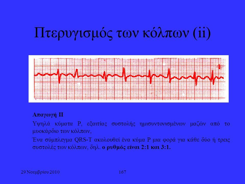 167 Πτερυγισμός των κόλπων (ii) Απαγωγή ΙΙ Υψηλά κύματα P, εξαιτίας συστολής ημισυντονισμένων μαζών από το μυοκάρδιο των κόλπων, Ένα σύμπλεγμα QRS-T α