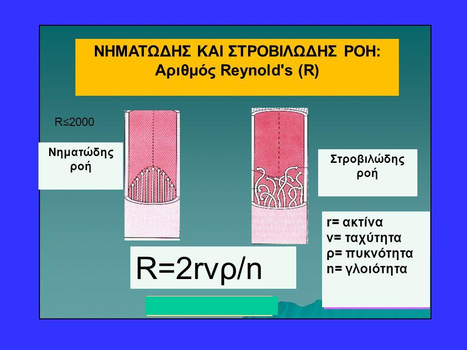 R=2rvρ/n Nηματώδης ροή Στροβιλώδης ροή r= ακτίνα v= ταχύτητα ρ= πυκνότητα n= γλοιότητα R≤2000 ΝΗΜΑΤΩΔΗΣ ΚΑΙ ΣΤΡΟΒΙΛΩΔΗΣ ΡΟΗ: Aριθμός Reynold's (R)