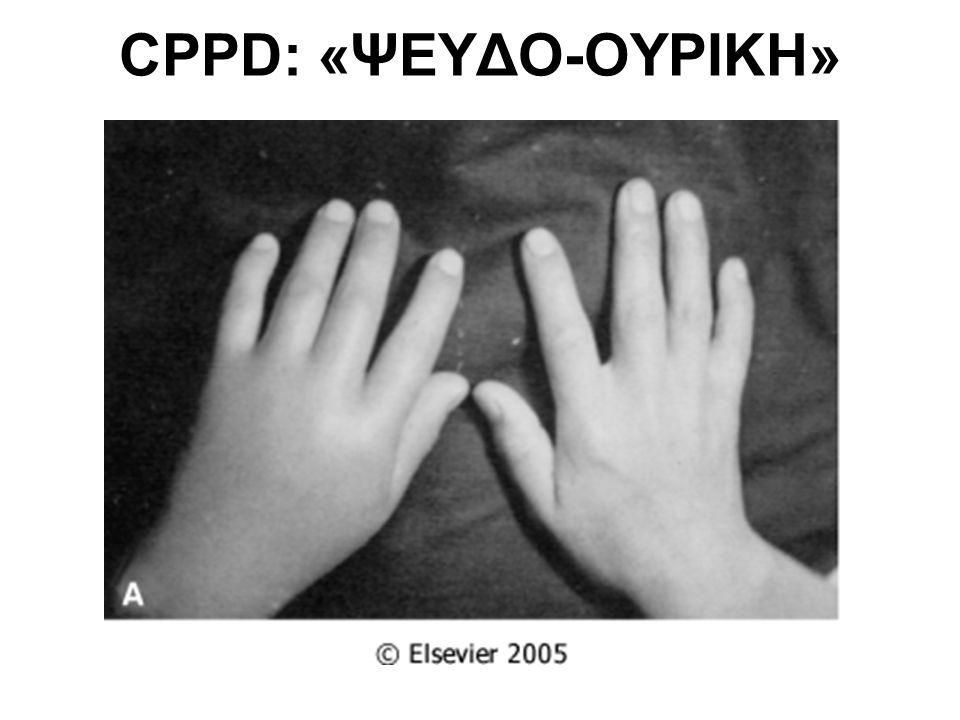CPPD: «ΨΕΥΔΟ-ΟΥΡΙΚΗ»