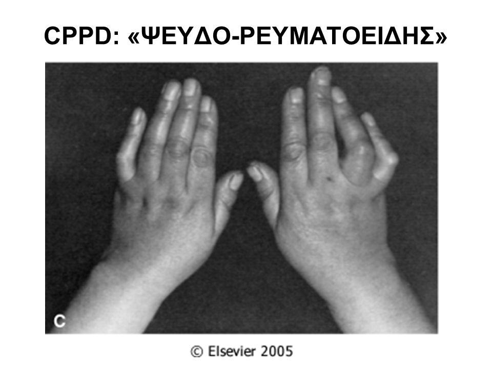 CPPD: «ΨΕΥΔΟ-ΡΕΥΜΑΤΟΕΙΔΗΣ»