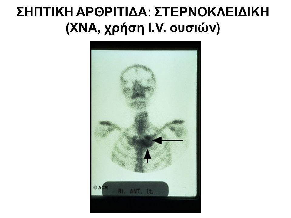 ΣΗΠΤΙΚΗ ΑΡΘΡΙΤΙΔΑ: ΣΤΕΡΝΟΚΛΕΙΔΙΚΗ (ΧΝΑ, χρήση I.V. ουσιών)