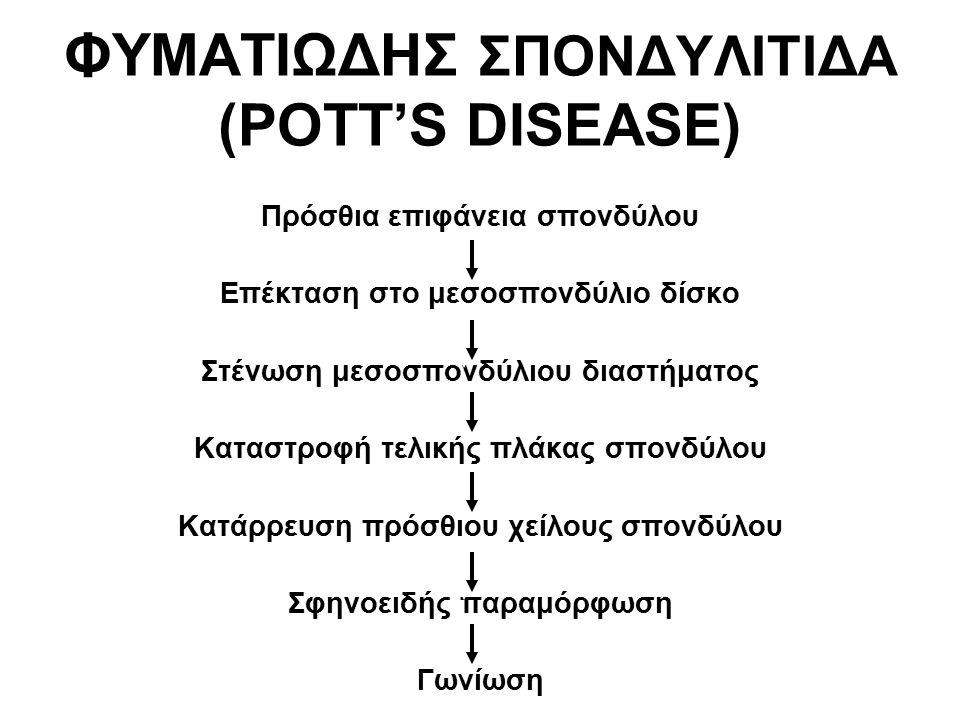 ΦΥΜΑΤΙΩΔΗΣ ΣΠΟΝΔΥΛΙΤΙΔΑ (POTT'S DISEASE) Πρόσθια επιφάνεια σπονδύλου Επέκταση στο μεσοσπονδύλιο δίσκο Στένωση μεσοσπονδύλιου διαστήματος Καταστροφή τελικής πλάκας σπονδύλου Κατάρρευση πρόσθιου χείλους σπονδύλου Σφηνοειδής παραμόρφωση Γωνίωση