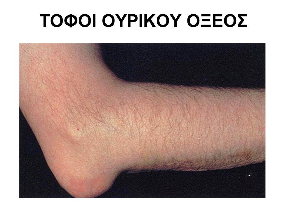 ΤΟΦΟΙ ΟΥΡΙΚΟΥ ΟΞΕΟΣ