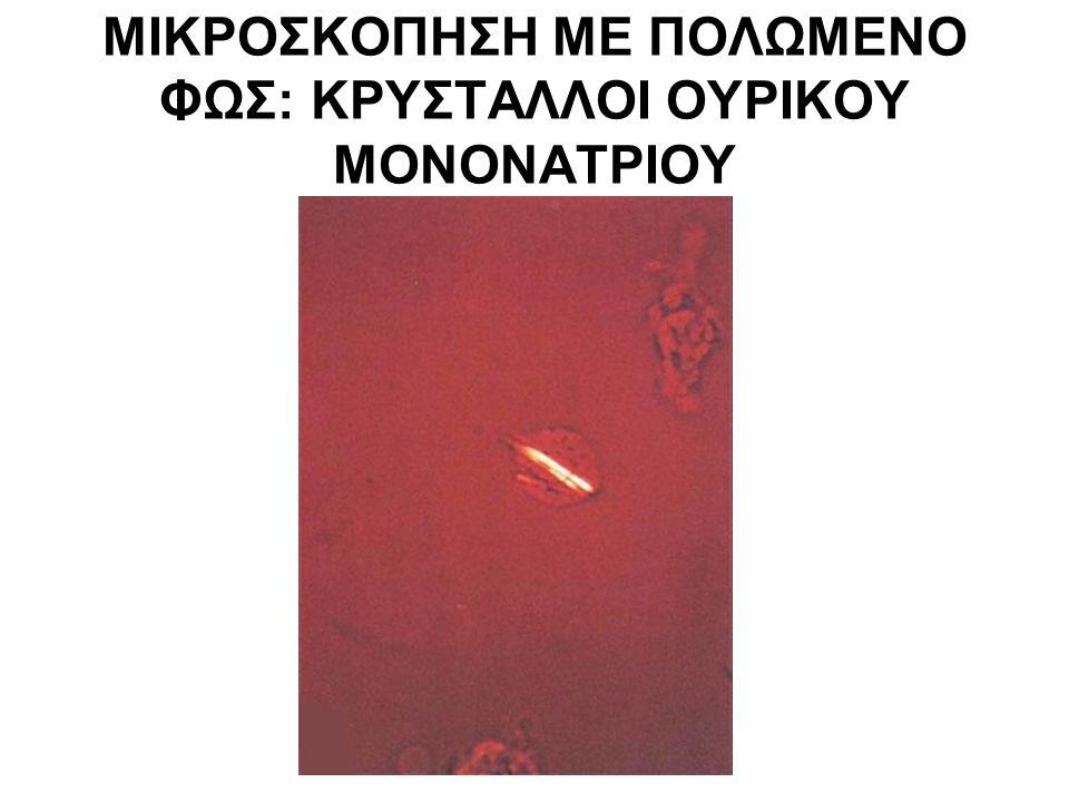 ΜΙΚΡΟΣΚΟΠΗΣΗ ΜΕ ΠΟΛΩΜΕΝΟ ΦΩΣ: ΚΡΥΣΤΑΛΛΟΙ ΟΥΡΙΚΟΥ ΜΟΝΟΝΑΤΡΙΟΥ