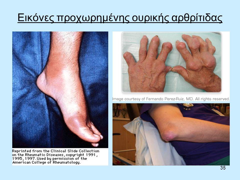 35 Εικόνες προχωρημένης ουρικής αρθρίτιδας