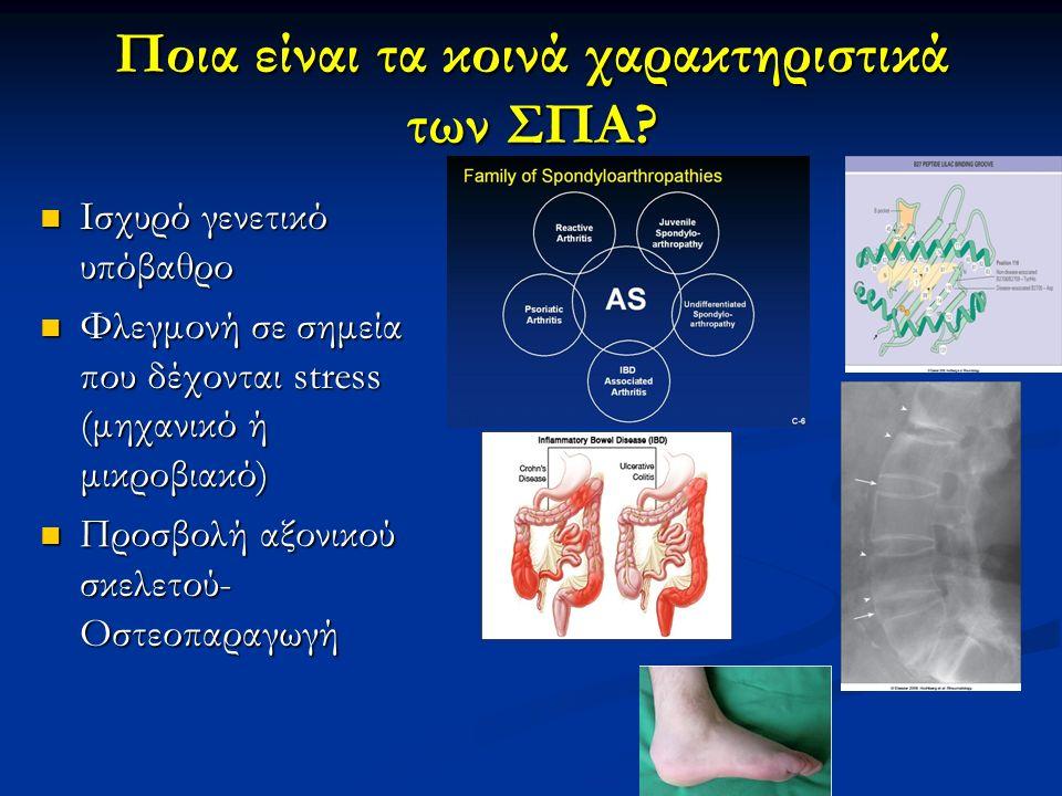 Ποια είναι τα κοινά χαρακτηριστικά των ΣΠΑ? Ισχυρό γενετικό υπόβαθρο Ισχυρό γενετικό υπόβαθρο Φλεγμονή σε σημεία που δέχονται stress (μηχανικό ή μικρο