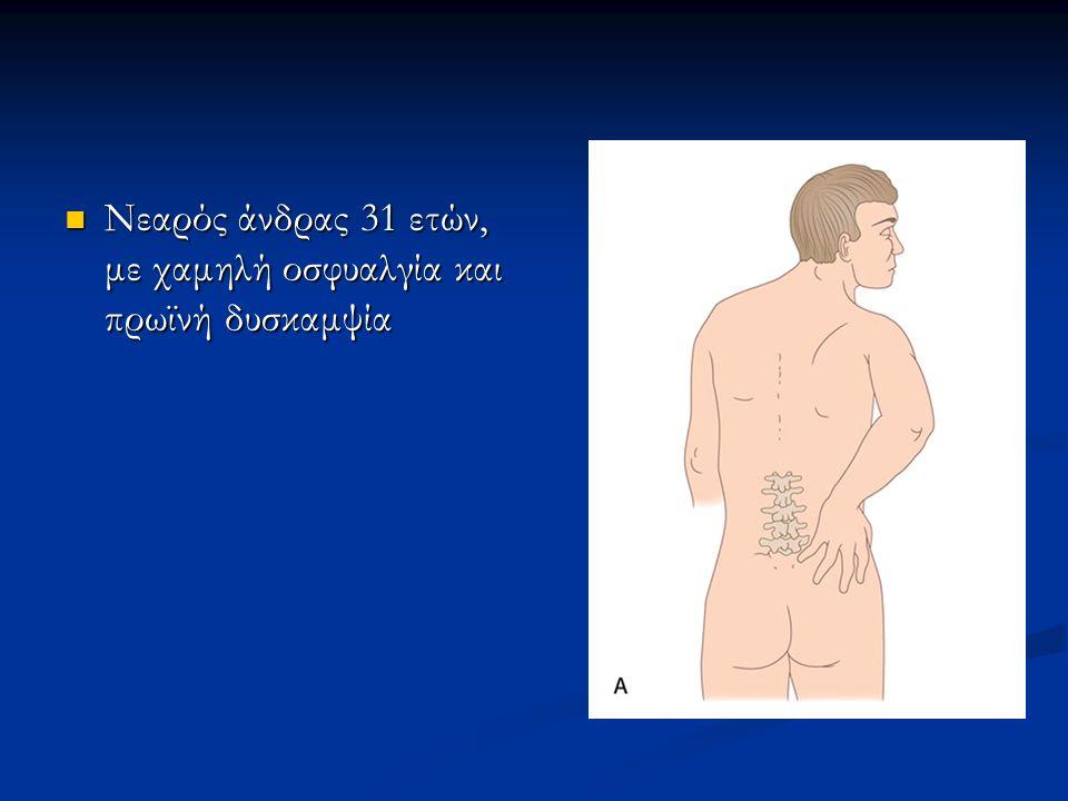 Η απλή ακτινογραφία δεν ανιχνεύει πρώιμες βλάβες Η απλή ακτινογραφία δεν ανιχνεύει πρώιμες βλάβες Πρακτικά ανιχνεύει την παραγωγή νέου οστού Πρακτικά ανιχνεύει την παραγωγή νέου οστού