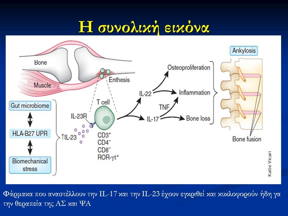 Η συνολική εικόνα Φάρμακα που αναστέλλουν την IL-17 και την IL-23 έχουν εγκριθεί και κυκλοφορούν ήδη γα την θεραπεία της ΑΣ και ΨΑ