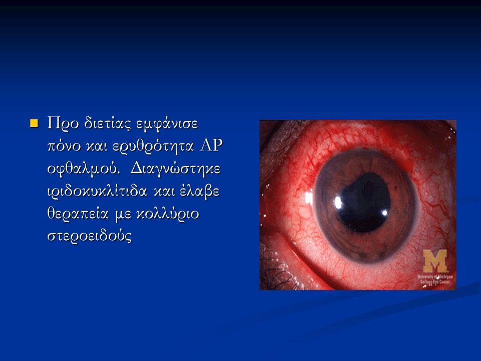 Προ διετίας εμφάνισε πόνο και ερυθρότητα ΑΡ οφθαλμού. Διαγνώστηκε ιριδοκυκλίτιδα και έλαβε θεραπεία με κολλύριο στεροειδούς Προ διετίας εμφάνισε πόνο