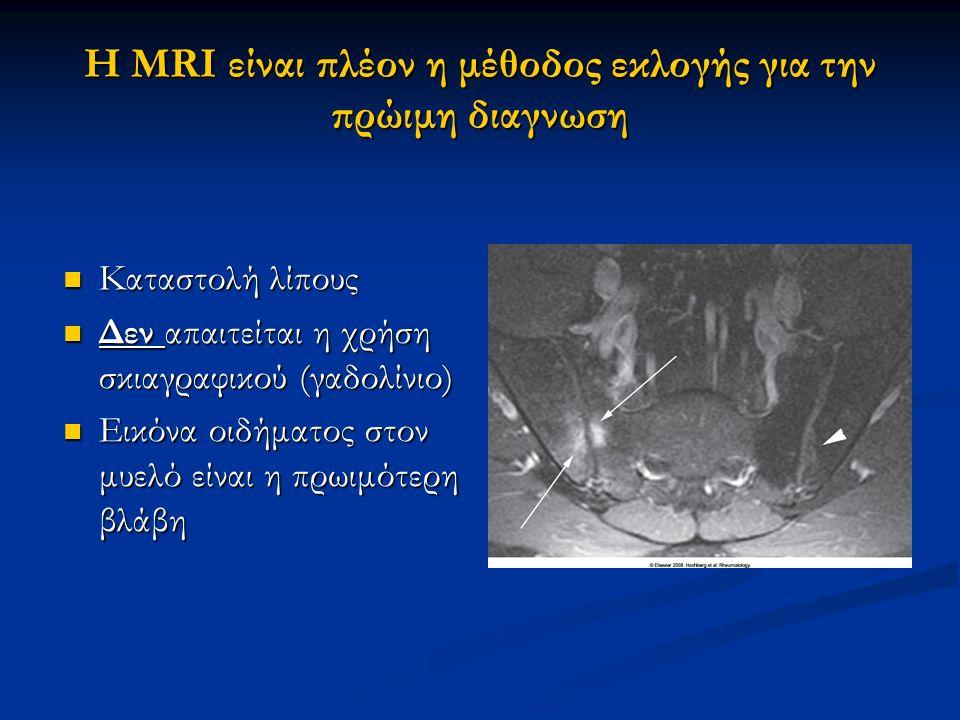 Η MRI είναι πλέον η μέθοδος εκλογής για την πρώιμη διαγνωση Καταστολή λίπους Καταστολή λίπους Δεν απαιτείται η χρήση σκιαγραφικού (γαδολίνιο) Δεν απαι