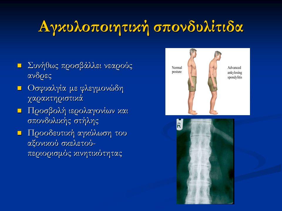 Αγκυλοποιητική σπονδυλίτιδα Συνήθως προσβάλλει νεαρούς ανδρες Συνήθως προσβάλλει νεαρούς ανδρες Οσφυαλγία με φλεγμονώδη χαρακτηριστικά Οσφυαλγία με φλ