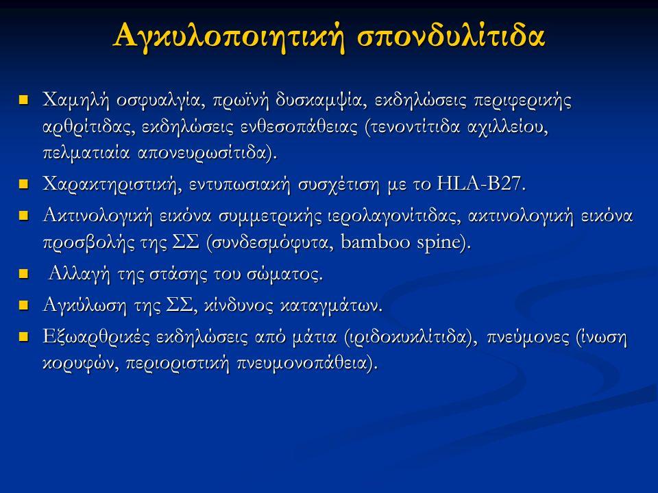 Αγκυλοποιητική σπονδυλίτιδα Χαμηλή οσφυαλγία, πρωϊνή δυσκαμψία, εκδηλώσεις περιφερικής αρθρίτιδας, εκδηλώσεις ενθεσοπάθειας (τενοντίτιδα αχιλλείου, πε