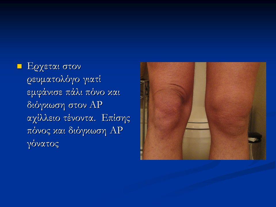 Ερχεται στον ρευματολόγο γιατί εμφάνισε πάλι πόνο και διόγκωση στον ΑΡ αχίλλειο τένοντα. Επίσης πόνος και διόγκωση ΑΡ γόνατος Ερχεται στον ρευματολόγο