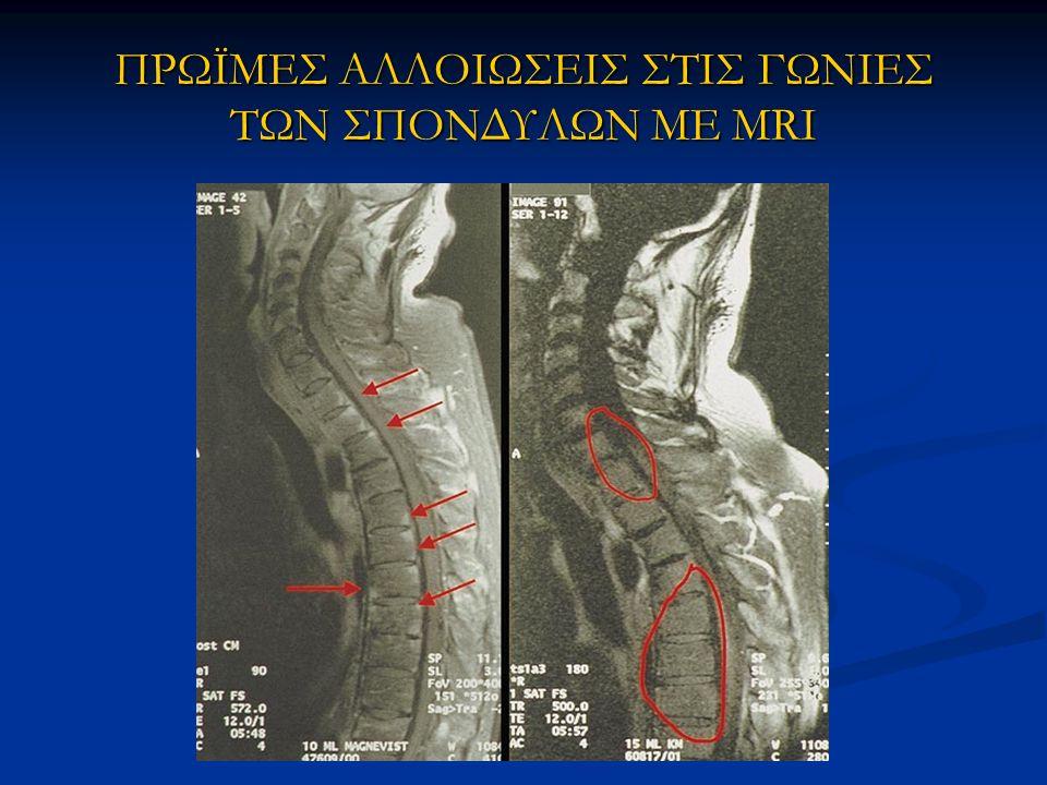 ΠΡΩΪΜΕΣ ΑΛΛΟΙΩΣΕΙΣ ΣΤΙΣ ΓΩΝΙΕΣ ΤΩΝ ΣΠΟΝΔΥΛΩΝ ΜΕ MRI