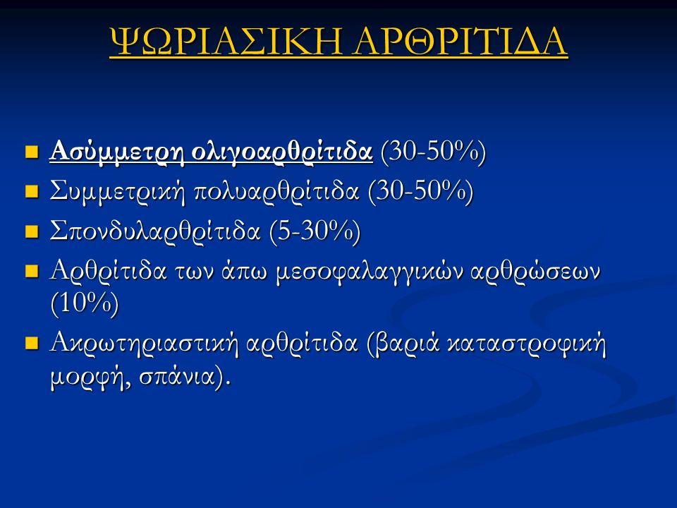 ΨΩΡΙΑΣΙΚΗ ΑΡΘΡΙΤΙΔΑ Ασύμμετρη ολιγοαρθρίτιδα (30-50%) Ασύμμετρη ολιγοαρθρίτιδα (30-50%) Συμμετρική πολυαρθρίτιδα (30-50%) Συμμετρική πολυαρθρίτιδα (30