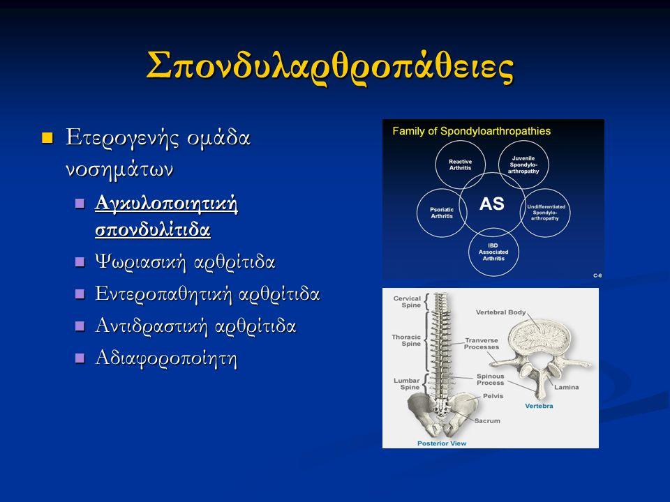 Σπονδυλαρθροπάθειες Ετερογενής ομάδα νοσημάτων Ετερογενής ομάδα νοσημάτων Αγκυλοποιητική σπονδυλίτιδα Αγκυλοποιητική σπονδυλίτιδα Ψωριασική αρθρίτιδα