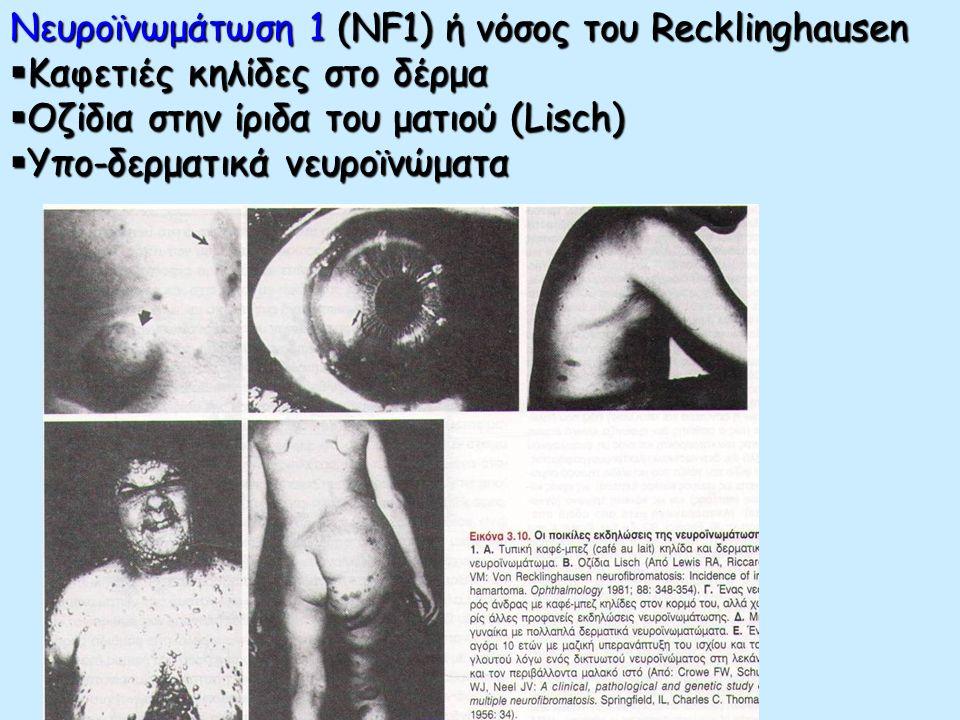 57 Νευροϊνωμάτωση 1 (NF1) ΑΤΕΛΗ ΔΙΕΙΣΔΥΤΙΚΟΤΗΤΑ ΚΑΙ ΜΕΤΑΒΛΗΤΗ ΕΚΦΡΑΣΤΙΚΟΤΗΤΑ Μεταβλητή εκφραστικότητα σε άτομα με νευροϊνωμάτωση. Επάνω: Κηλίδα café-a