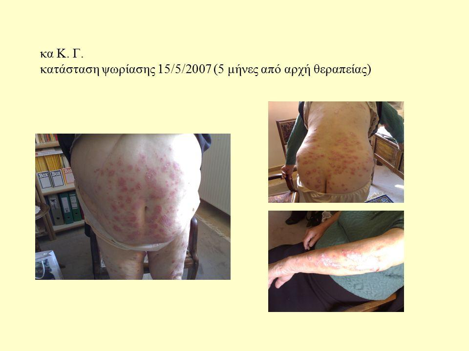 κα Κ. Γ. κατάσταση ψωρίασης 15/5/2007 (5 μήνες από αρχή θεραπείας)